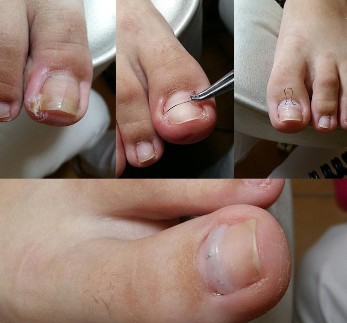 Боль, которую вы ощущаете - это следствие того, что у вас вросший ноготь на все вокруг начал реагировать воспалением, может покраснением или же отеком.